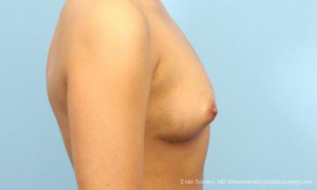 Philadelphia Breast Augmentation 9393 - Before Image 3