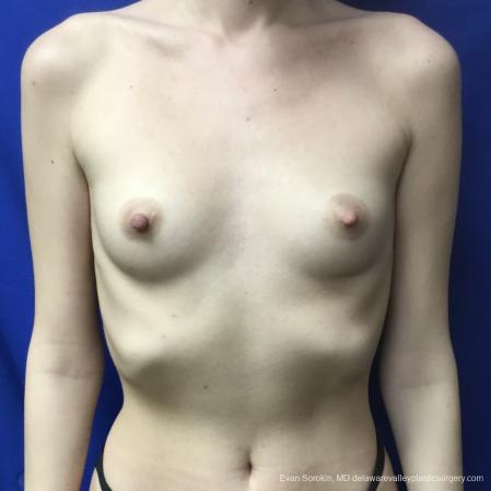 Breast Augmentation: Patient 166 - Before Image 1