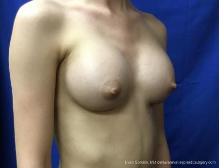 Breast Augmentation: Patient 160 - After Image 2