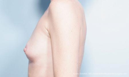 Philadelphia Breast Augmentation 9359 - Before and After Image 5