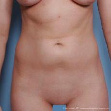 Philadelphia Liposuction 9482 - Before Image