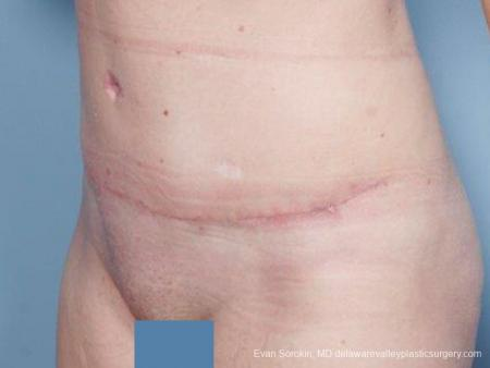 Philadelphia Abdominoplasty 9476 -  After Image 4