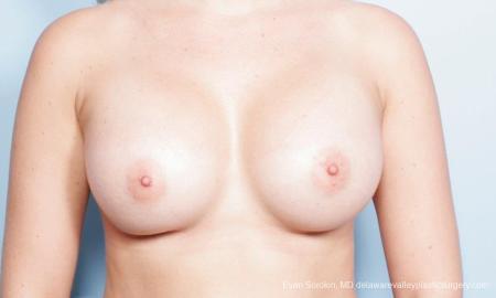 Philadelphia Breast Augmentation 9303 -  After Image 1