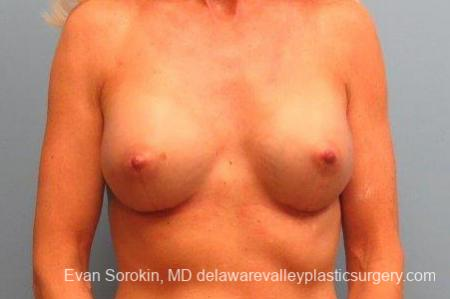 Philadelphia Breast Augmentation 9415 -  After Image 1