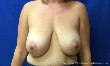 Philadelphia Breast Reduction 12512 - Before Image