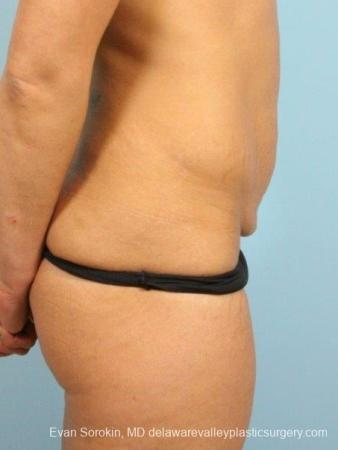 Philadelphia Abdominoplasty 8698 - Before and After Image 4