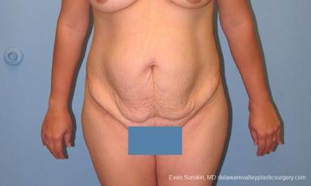 Philadelphia Abdominoplasty 10122 - Before Image 1