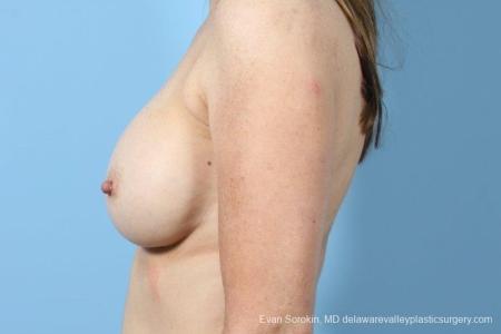 Philadelphia Breast Augmentation 8708 - Before Image 4