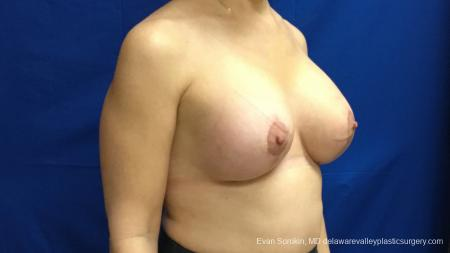 Philadelphia Breast Lift and Augmentation 13179 -  After Image 3