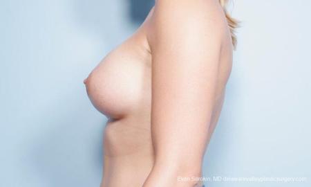 Philadelphia Breast Augmentation 9296 -  After Image 5