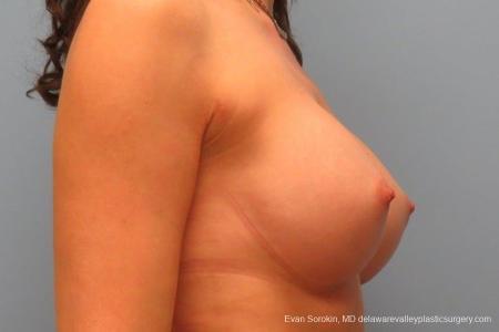 Philadelphia Breast Augmentation 8764 -  After Image 4