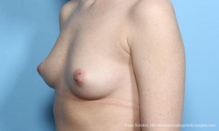 Philadelphia Breast Augmentation 9181 - Before Image 4