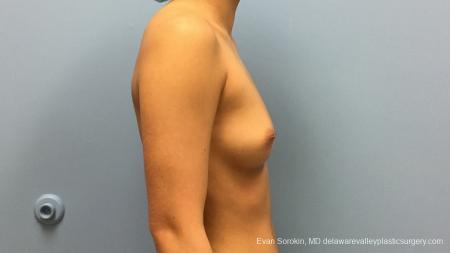 Philadelphia Breast Augmentation 13183 - Before Image 3