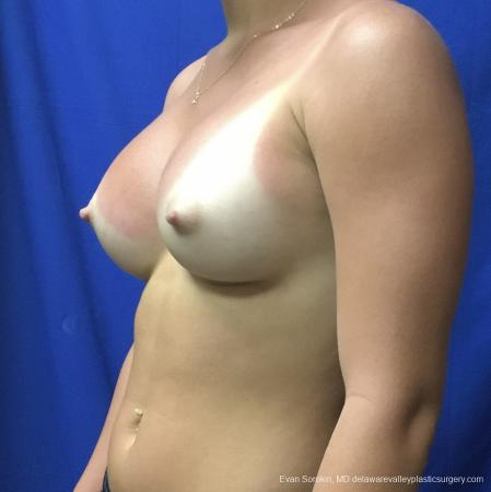 Breast Augmentation: Patient 165 - After Image 4