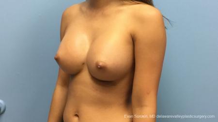 Philadelphia Breast Augmentation 13183 -  After Image 4
