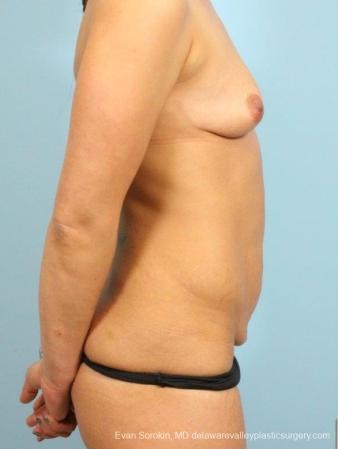 Philadelphia Mommy Makeover 8697 - Before Image 3