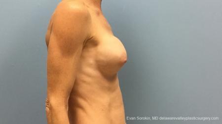 Philadelphia Breast Augmentation 13182 -  After Image 5