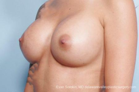 Philadelphia Breast Augmentation 9411 -  After Image 2