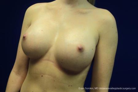 Philadelphia Breast Augmentation 8670 -  After Image 3
