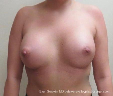 Philadelphia Breast Augmentation 8826 -  After Image 1