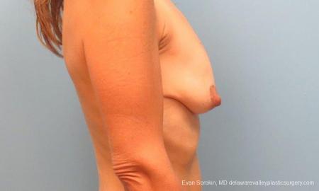 Philadelphia Breast Lift and Augmentation 9485 - Before Image 3