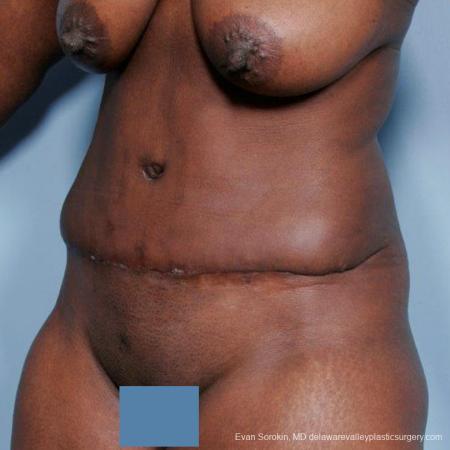 Philadelphia Abdominoplasty 9477 -  After Image 4