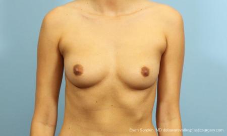 Philadelphia Breast Augmentation 9195 - Before Image 1