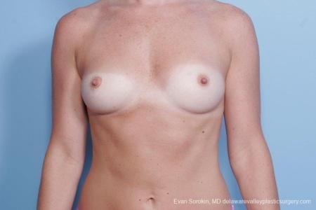 Philadelphia Breast Augmentation 8785 - Before Image 1