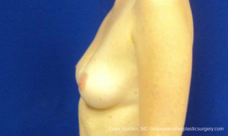 Philadelphia Breast Augmentation 8777 - Before and After Image 5