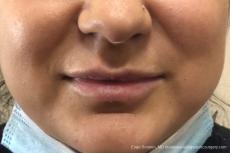 Lip Filler: Patient 10 - Before Image