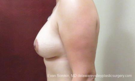 Philadelphia Breast Lift and Augmentation 10123 -  After Image 5
