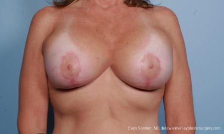 Philadelphia Breast Lift and Augmentation 9438 -  After Image 1