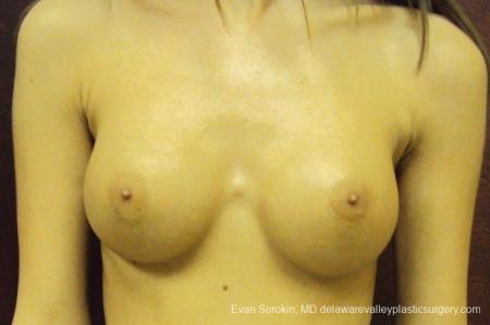 Philadelphia Breast Augmentation 8668 -  After Image 1