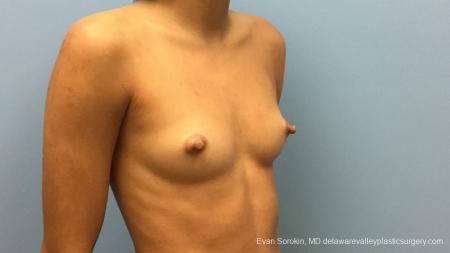 Philadelphia Breast Augmentation 13176 - Before Image 2