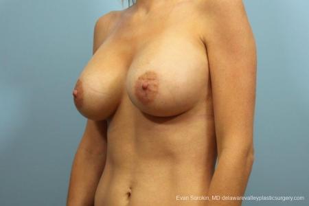 Philadelphia Breast Augmentation 9105 -  After Image 4