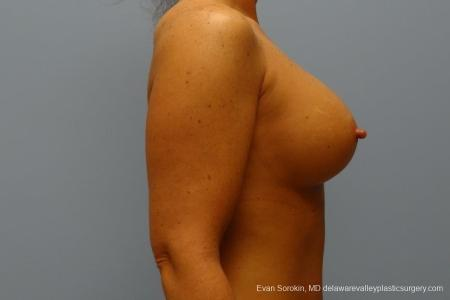 Philadelphia Breast Augmentation 8774 -  After Image 4