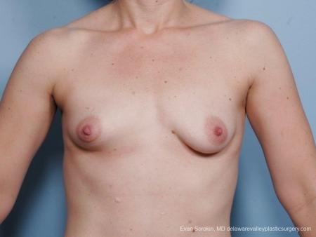 Philadelphia Breast Lift and Augmentation 8686 - Before Image 1