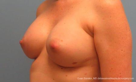 Philadelphia Breast Augmentation 9180 -  After Image 4