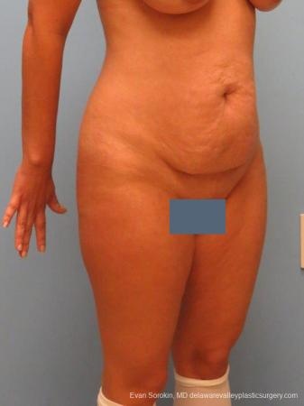 Philadelphia Abdominoplasty 9460 - Before Image 2