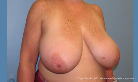 Philadelphia Breast Reduction 10118 - Before Image 2