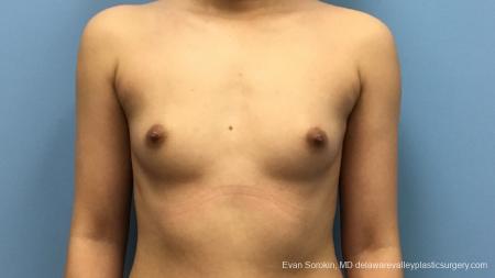 Philadelphia Breast Augmentation 13172 - Before Image 1