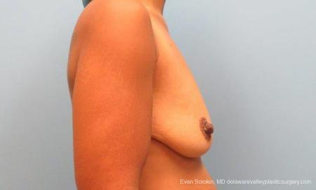 Philadelphia Breast Lift and Augmentation 9343 - Before Image 3
