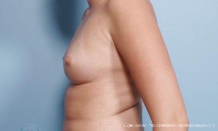 Philadelphia Breast Augmentation 9301 - Before and After Image 5