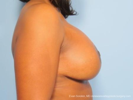 Philadelphia Breast Lift and Augmentation 8684 -  After Image 4