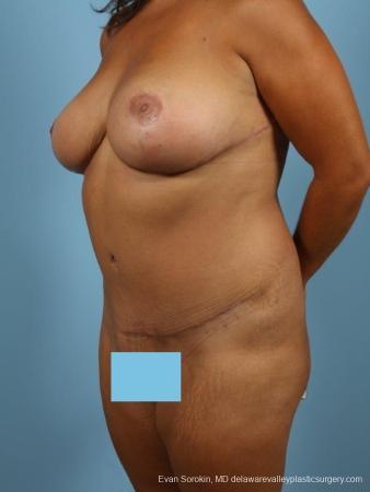 Philadelphia Mommy Makeover 8699 -  After Image 3