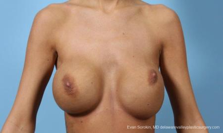 Philadelphia Breast Augmentation 9445 - Before Image 1