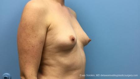 Philadelphia Breast Augmentation 13181 - Before Image 2