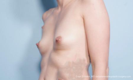 Philadelphia Breast Augmentation 9175 - Before Image 4
