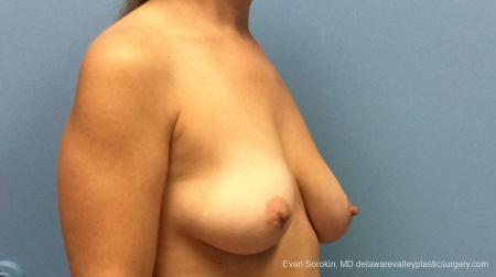 Philadelphia Breast Lift and Augmentation 13179 - Before Image 3