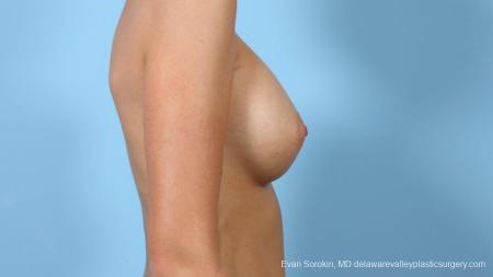 Philadelphia Breast Augmentation 9292 -  After Image 5